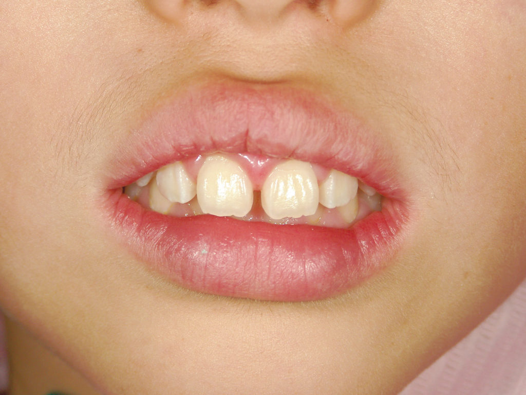 いつも口を開けている習慣がある子ども。口元の力が弱まっています(日本学校歯科医会提供)