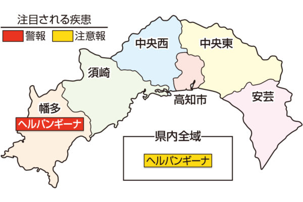 ヘルパンギーナが流行しています|高知県の感染症情報(10月19~25日)